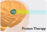 Proton Video Link